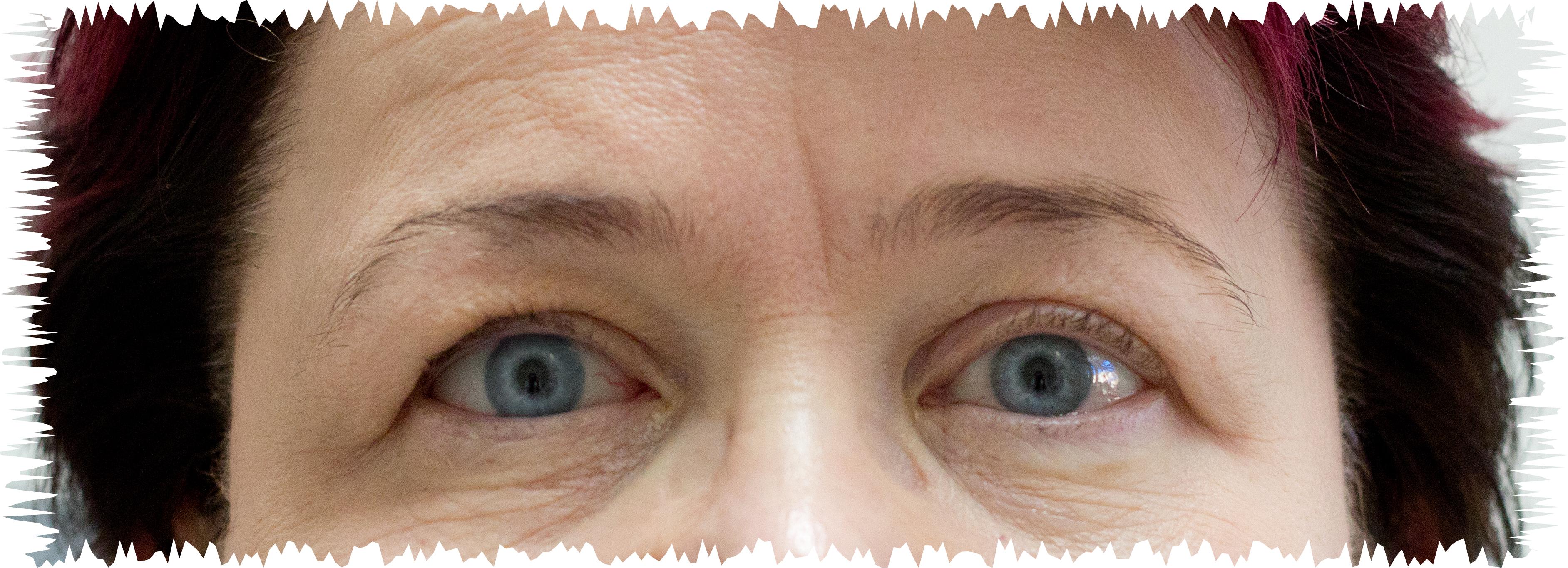 Silmäproteesi